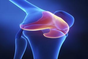 CT Scans for Knee Injuries and Other Knee Conditions