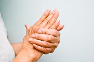 Treatment of Rheumatoid Arthritis
