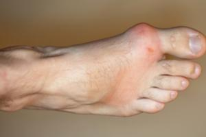How Does Gout Affect You?