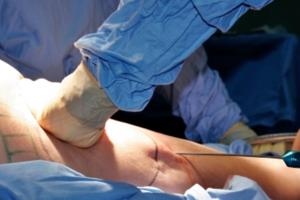 Risks with the Liposuction Procedure