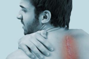 Long Term Management of Scoliosis