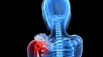 shoulder impingement placeholder