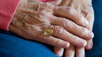 vanlaeken arthritis plastic surgery