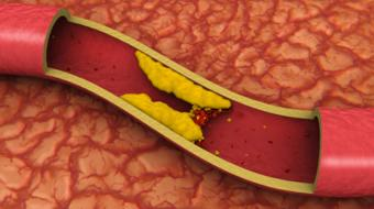 Brett Heilbron, MD, FRCPC, cardiologist, discusses lowering your cholesterol.