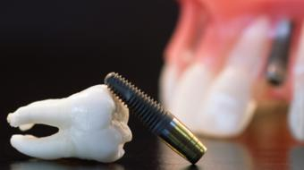 dental implant injury