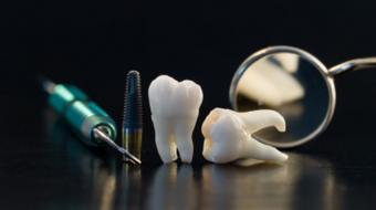 dental traumatic tooth repair