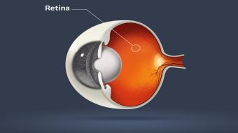 Dr. Michael Kapusta, MD, FRSCS, Ophthalmologist, talks about what a retinal detachment is, including causes and symptoms.
