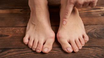 feet with bunions