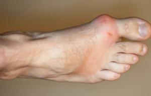 gout symptoms arthritis