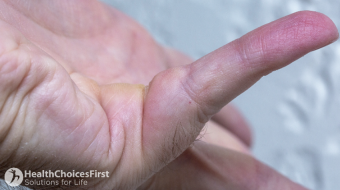hand dupuytrens finger curl