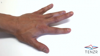 Finger Lifts - Isolated Finger Extensions