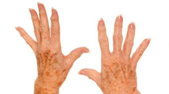 Dr. Kam Shojania, MD FRCPC, Rheumatologist, discusses rheumatoid arthritis.