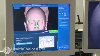 head image nasal