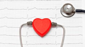 Dr. Peter House, MD, discusses heart stress tests.