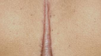 Plastic Surgery and Scarring