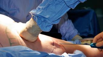 liposuction plastic surgery