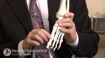 Dr. Alastair Younger, MB, Ch.B, M.Sc, Ch.M, F.R.C.S.(C), discusses How an Orthopaedic Surgeon Can Help You With Foot Pain and Bunionswhat causes bunions and how they are treated.
