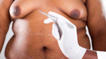 Dr Nancy Van Laeken MD, FRCSC, Plastic Surgeon discusses What is Gynecomastia.