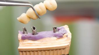 options for implant dental