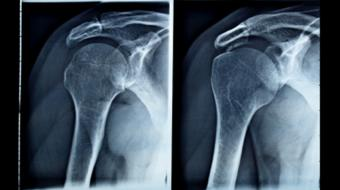 Dr. Patrick Chin, MD, MBA, FRCSC, Orthopedic Surgeon, discusses What is Shoulder Arthritis - Orthopedic Surgery.