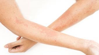 Understanding Atopic Dermatitis