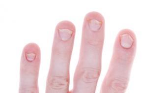 symptomspsori arthritis