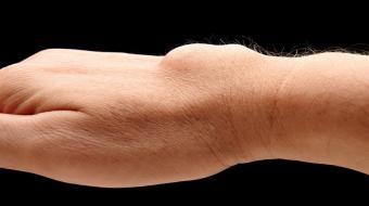 Dr. Bert Perey, MD, FRCPC, Orthopedic Surgeon, talks about what a ganglion cyst of the dorsal wrist is.