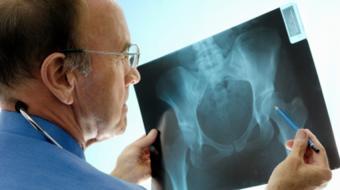 xray osteoporosis