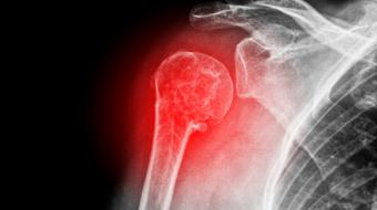 xray image shoulder pain