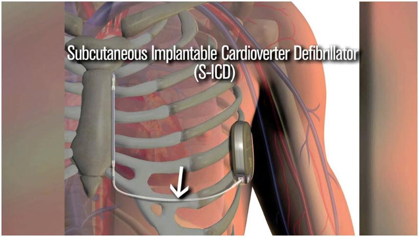 /uploads/videothumbs/heart-subcutaneous-defibrillator.jpg