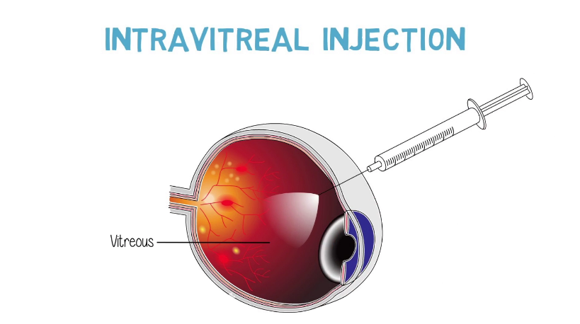/uploads/videothumbs/screenshot-2020-02-19-intravitreal-injections-the-procedure.png